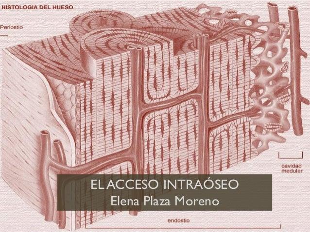 EL ACCESO INTRAÓSEO Elena Plaza Moreno