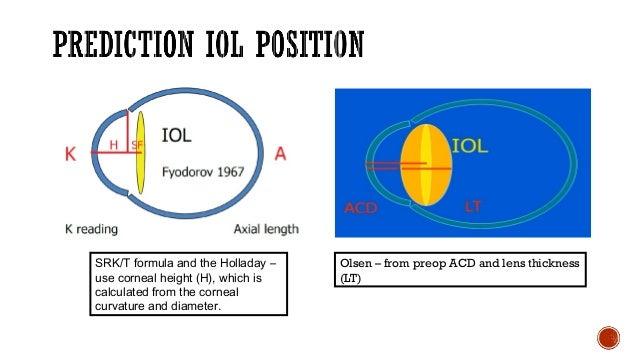 Biometry: Iol calculation