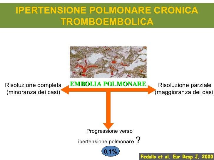 Ipertensione polmonare secondaria clina e terapia