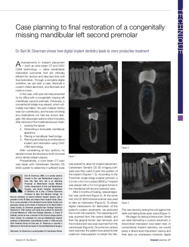 Advancements in implant placement — such as cone beam CT and CAD/ CAM technology — allow predictable restorative outcomes...