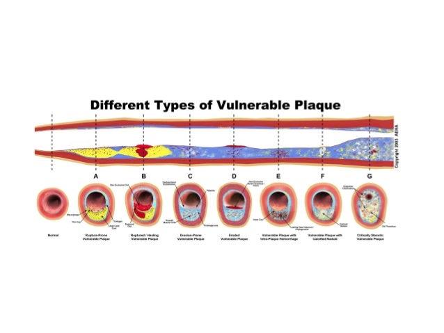 150 sudden pathology of sudden cardiac death
