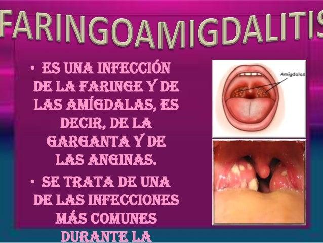 Infecciones De La Garganta Related Keywords - Infecciones