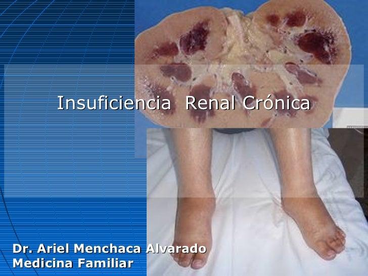 Insuficiencia Renal CrónicaDr. Ariel Menchaca AlvaradoMedicina Familiar