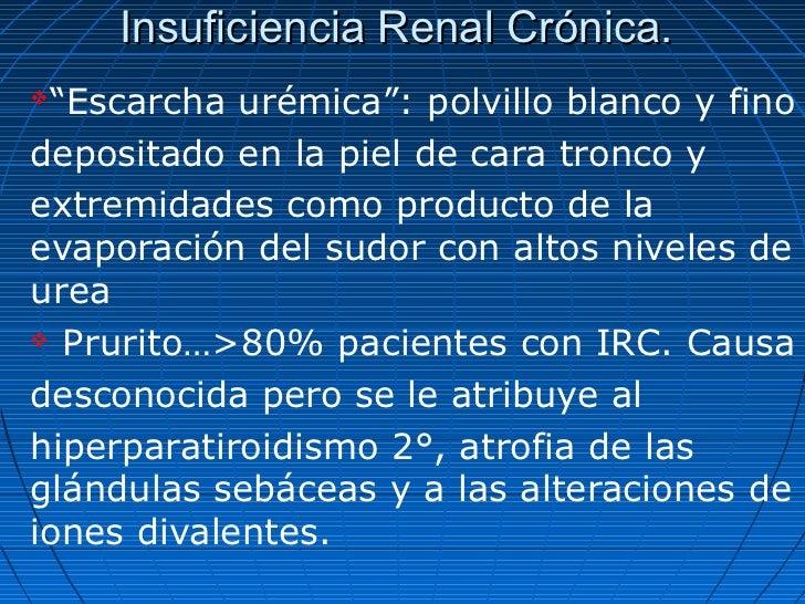 """Insuficiencia Renal Crónica.""""Escarcha urémica"""": polvillo blanco y finodepositado en la piel de cara tronco yextremidades ..."""
