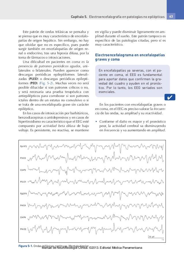 Capítulo 5. Electroencefalografía en patologías no epilépticas 63 Este patrón de ondas trifásicas se pensaba y se piensa ...