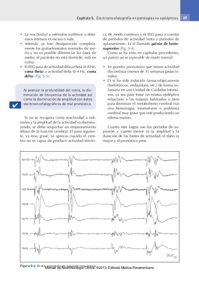Capítulo 5. Electroencefalografía en patologías no epilépticas 65 • La reactividad a estímulos auditivos o dolo- rosos i...