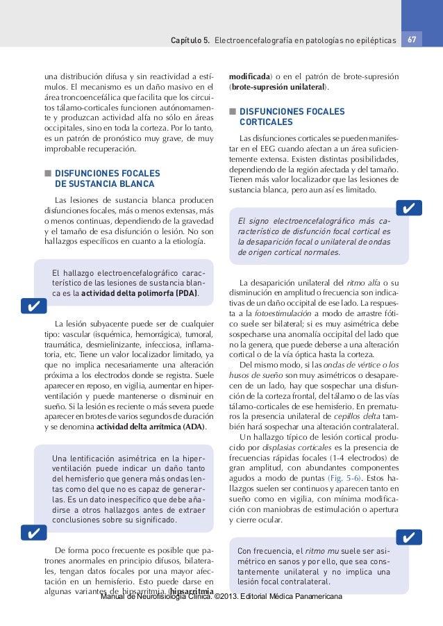 Capítulo 5. Electroencefalografía en patologías no epilépticas 67 una distribución difusa y sin reactividad a estí- mulos...