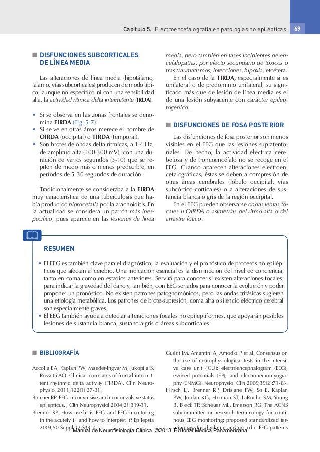 Capítulo 5. Electroencefalografía en patologías no epilépticas 69 ■■ DISFUNCIONES SUBCORTICALES DE LÍNEA MEDIA Las altera...