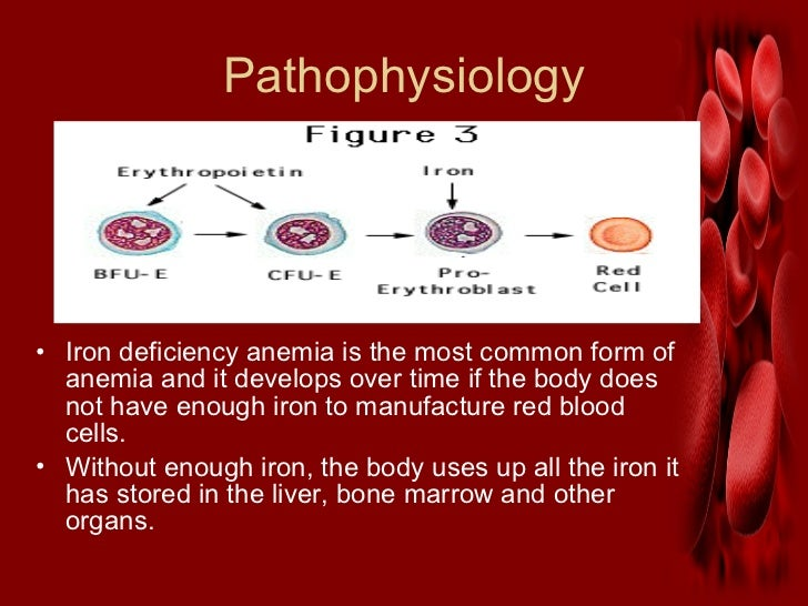 Iron deficiency anemia. Slide 3