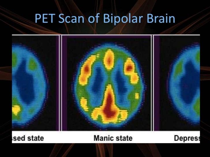 adhd is a neurological brain disorder