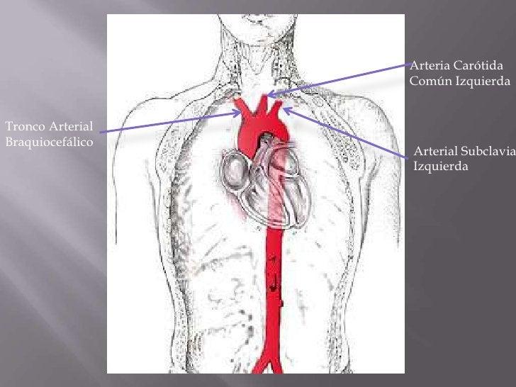 Arteria Carótida Común Izquierda<br />Tronco Arterial Braquiocefálico<br />Arterial Subclavia Izquierda<br />