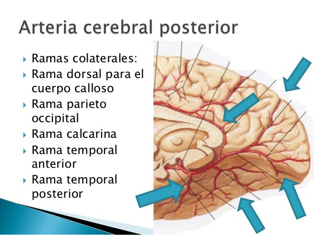 Resultado de imagen de arteria cerebral posterior