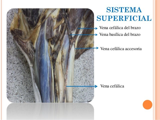 Irrigación y drenaje venoso miembro torácico. Anatomia veterinaria