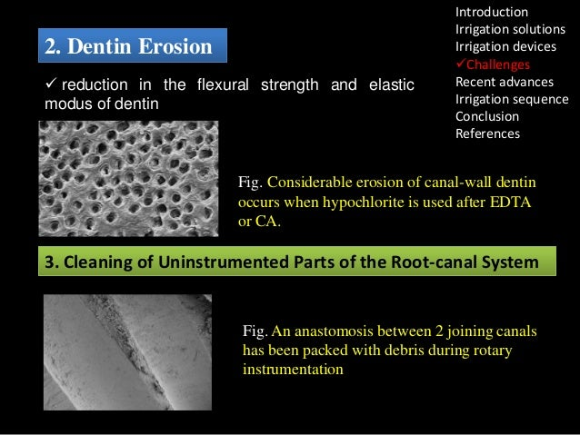 2. Dentin Erosion  reduction in the flexural strength and elastic modus of dentin  Introduction Irrigation solutions Irri...
