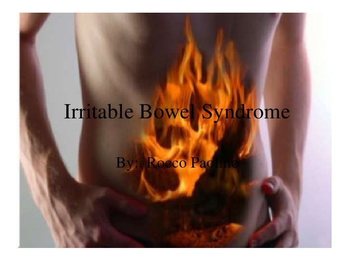 Irritable Bowel Syndrome     By: Rocco Paolino