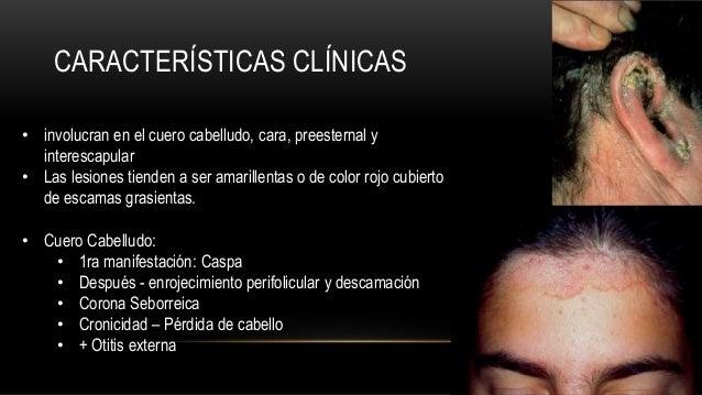 Las revocaciones sobre el tratamiento atopicheskogo de la dermatitis a los niños