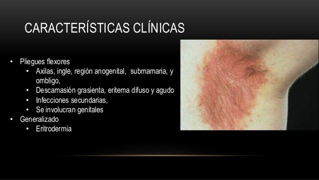El mejor sanatorio para el tratamiento de la psoriasis en rossii