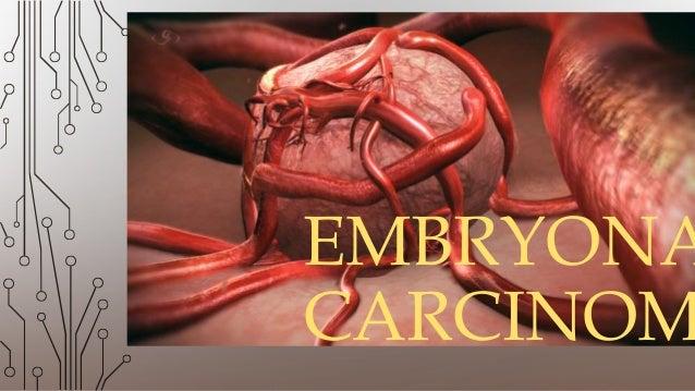EMBRYONA CARCINOM