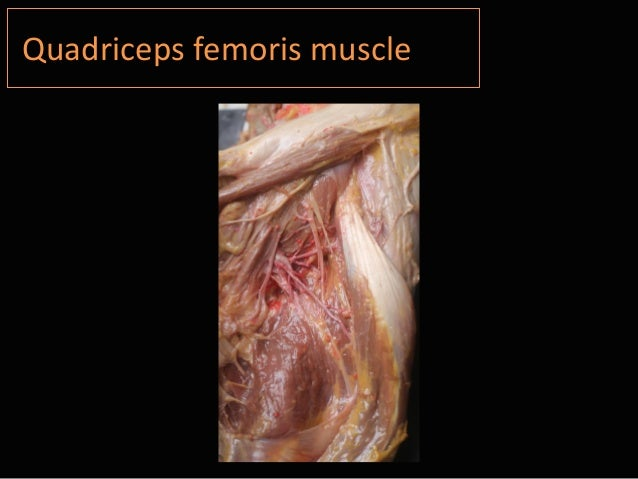 Isabel Miguel: Quadriceps muscle anatomy Cadaver study - PRP