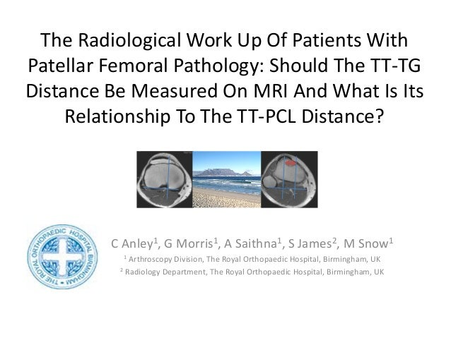 The Radiological Work Up Of Patients With Patellar Femoral Pathology: Should The TT-TG Distance Be Measured On MRI And Wha...