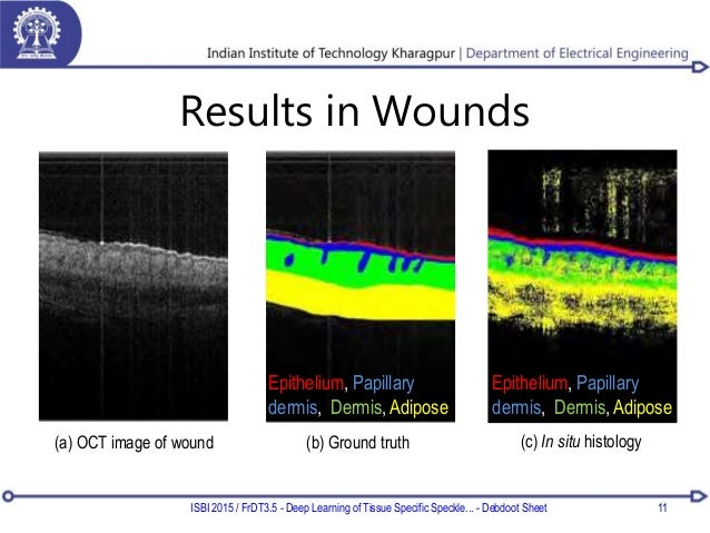 Results in Wounds ISBI 2015 / FrDT3.5 - Deep Learning of Tissue Specific Speckle... - Debdoot Sheet 11 (a) OCT image of wo...