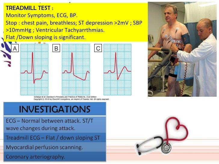 TREADMILL TEST : Monitor Symptoms, ECG, BP. Stop : chest pain, breathless; ST depression >2mV ; SBP >10mmHg ; Ventricular ...