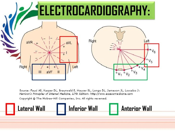 Lateral Wall  Inferior Wall  Anterior Wall  ELECTROCARDIOGRAPHY: