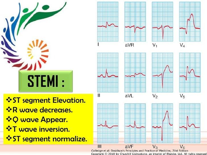 <ul><li>ST segment Elevation. </li></ul><ul><li>R wave decreases. </li></ul><ul><li>Q wave Appear. </li></ul><ul><li>T wav...