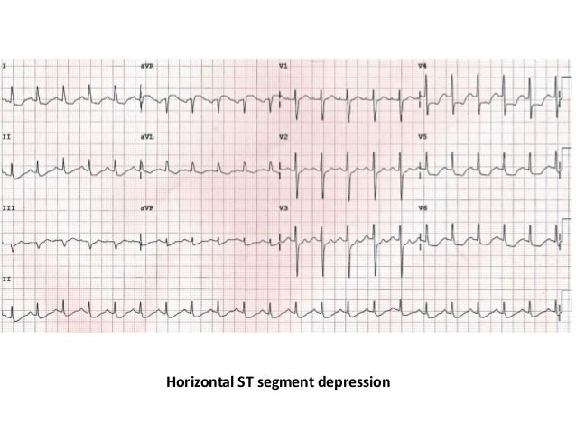 ECG changes in myocardial Ischemia and injury