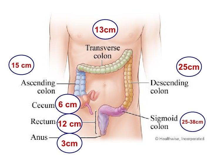 ischemic colitis, Skeleton