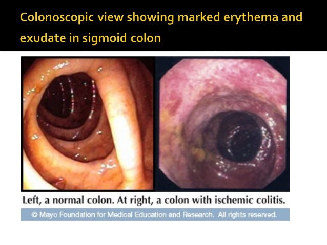 Ischemic Colitis