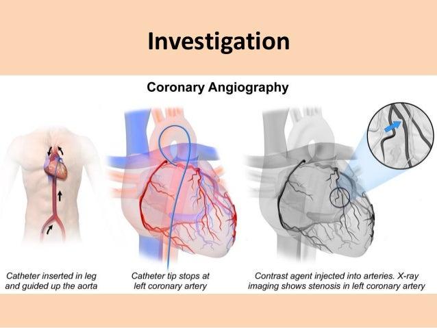 Management • Management of angina pectoris involves – careful assessment of the likely extent and severity of arterial dis...