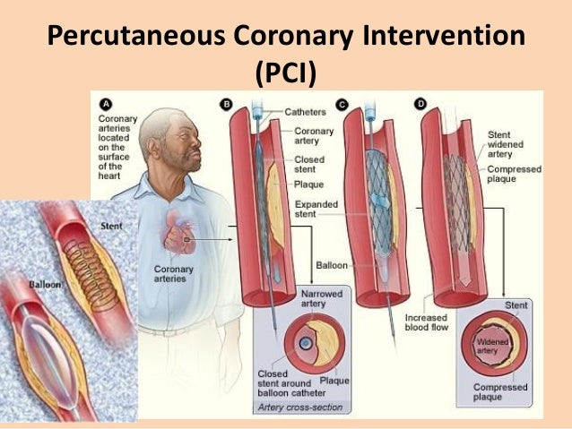 Coronary artery bypass grafting (CABG) • Stenosed artery is by-passed with – internal mammary arteries – radial arteries –...
