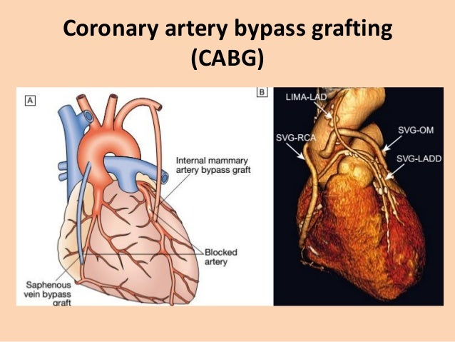 Acute Coronary Syndrome • It consist of – Myocardial Infarction: ST-elevation myocardial infarction (STEMI) or Non-ST-elev...