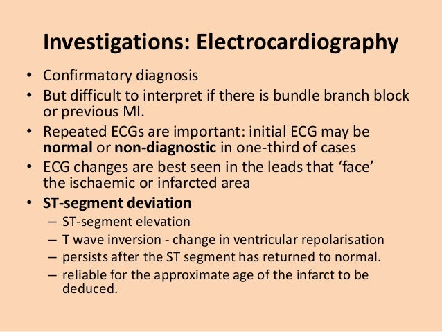 Investigations: Electrocardiography a Normal ECG complex. B Acute ST elevation ('the current of injury'). C Progressive lo...