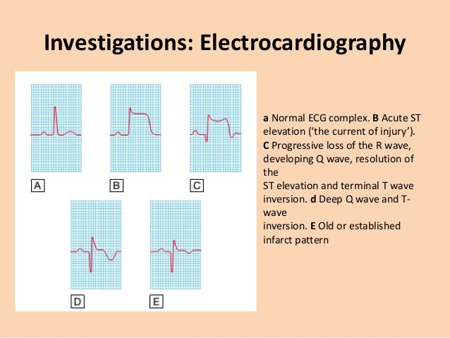 Investigations: Electrocardiography • Non-ST segment elevation ACS – Partial occlusion of a major vessel or complete occlu...