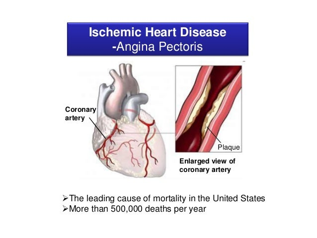 thesis on ischemic heart disease   essay on ischemic heart disease  thesis on ischemic heart disease