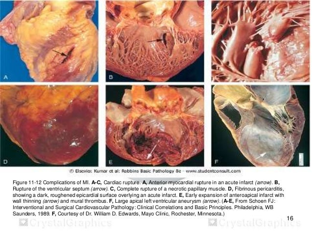 Ischemic heart disease myocardial infarction for Apical mural thrombus