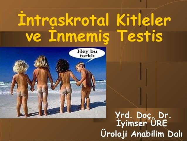 İntraskrotal Kitleler ve İnmemiş Testis  Yrd. Doç. Dr. İyimser ÜRE Üroloji Anabilim Dalı