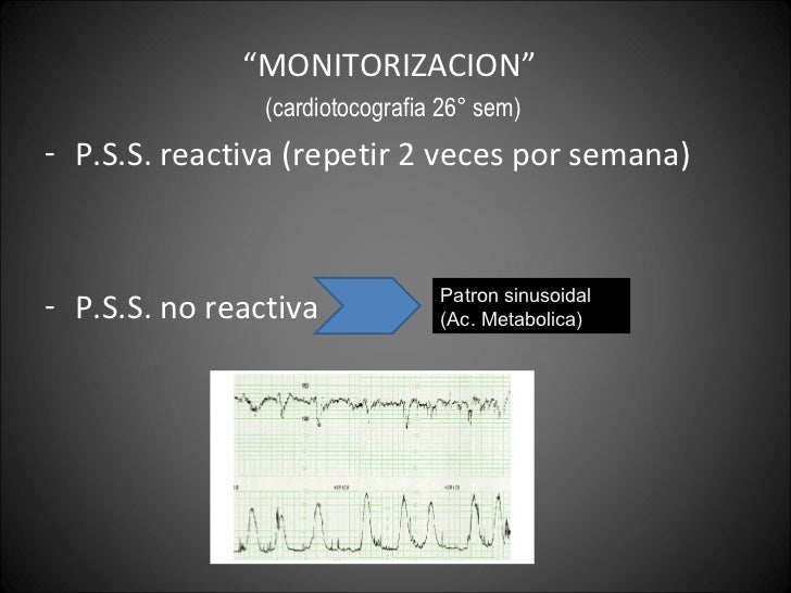 "<ul><li>"" MONITORIZACION""  </li></ul><ul><li>(cardiotocografia 26° sem) </li></ul><ul><li>P.S.S. reactiva (repetir 2 veces..."