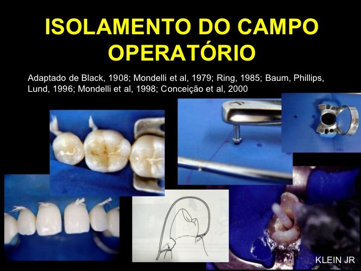ISOLAMENTO DO CAMPO OPERATÓRIO Adaptado de Black, 1908; Mondelli et al, 1979; Ring, 1985; Baum, Phillips, Lund, 1996; Mond...