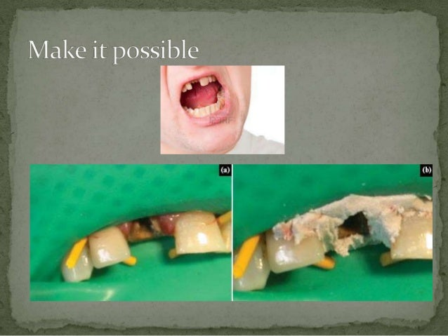 Isolation in endodontic