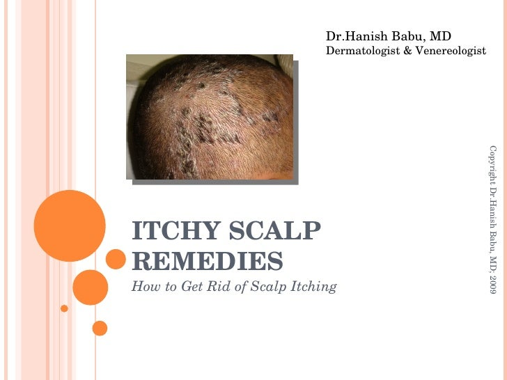ITCHY SCALP REMEDIES How to Get Rid of Scalp Itching Dr.Hanish Babu, MD Dermatologist & Venereologist Copyright Dr.Hanish ...