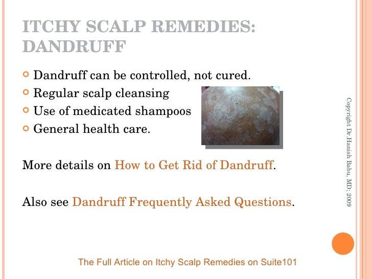 ITCHY SCALP REMEDIES: DANDRUFF <ul><li>Dandruff can be controlled, not cured. </li></ul><ul><li>Regular scalp cleansing  <...