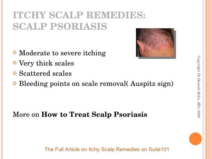 <ul><li>Moderate to severe itching </li></ul><ul><li>Very thick scales </li></ul><ul><li>Scattered scales </li></ul><ul><l...