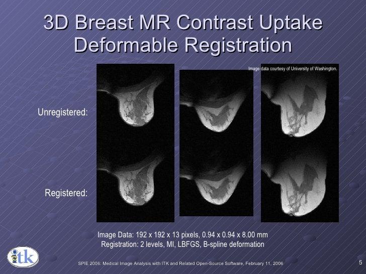 3D Breast MR Contrast Uptake Deformable Registration Unregistered: Registered: Image Data: 192 x 192 x 13 pixels, 0.94 x 0...
