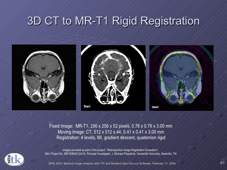 3D CT to MR-T1 Rigid Registration Fixed Image:  MR-T1, 256 x 256 x 52 pixels, 0.78 x 0.78 x 3.00 mm Moving Image: CT, 512 ...