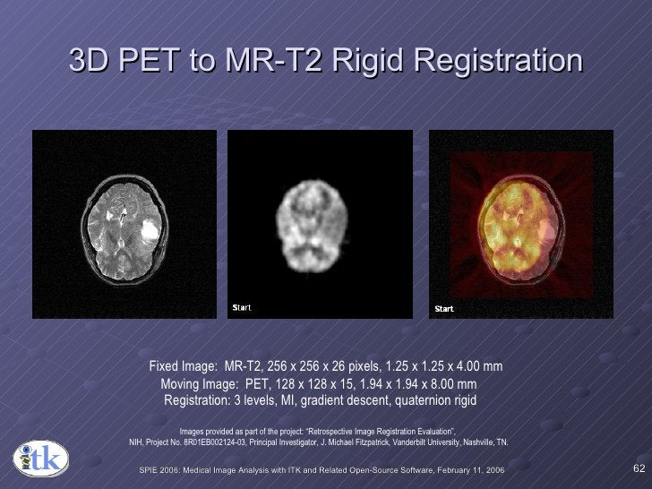 3D PET to MR-T2 Rigid Registration Fixed Image:  MR-T2, 256 x 256 x 26 pixels, 1.25 x 1.25 x 4.00 mm Moving Image:  PET, 1...
