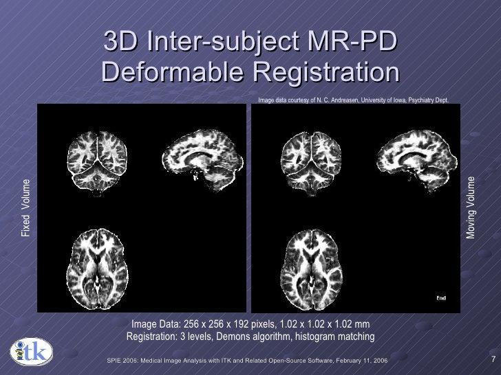 3D Inter-subject MR-PD Deformable Registration Image Data: 256 x 256 x 192 pixels, 1.02 x 1.02 x 1.02 mm Registration: 3 l...