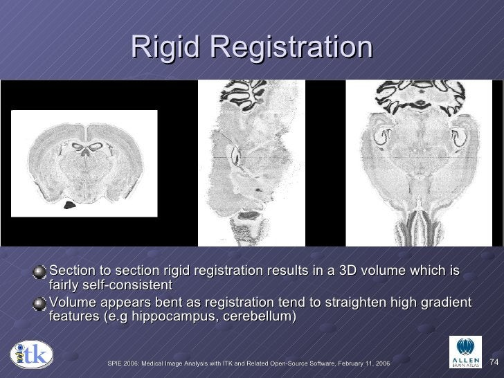Rigid Registration <ul><li>Section to section rigid registration results in a 3D volume which is fairly self-consistent </...